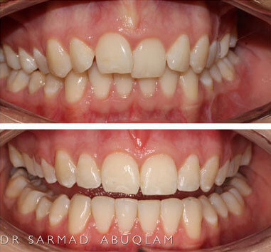 Comparison of teeth with 4 months ortho