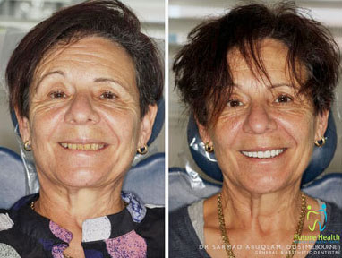 Veneers on older lady