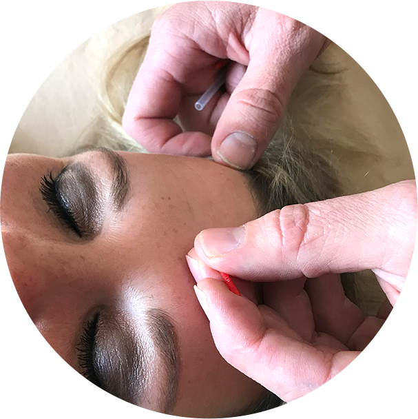 Doctor applying acupuncture to womans forehead