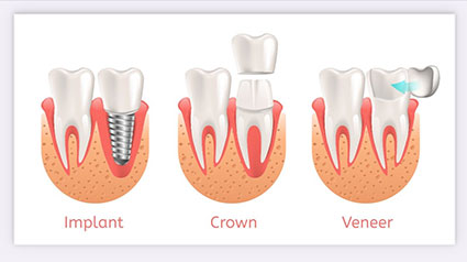 Restorative dentistry examples