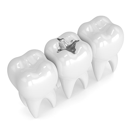 Tooth with filling model