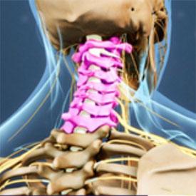 Neck pain model
