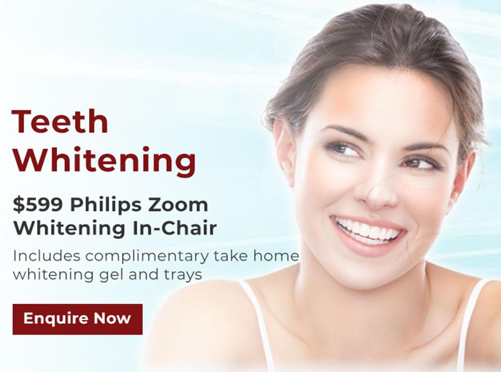 Teeth Whitening Promo; $599 Zoom Whitening In-Chair