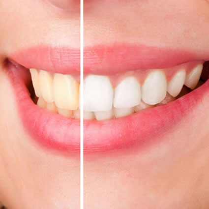 Woman's teeth before and after teeth whitening treatment