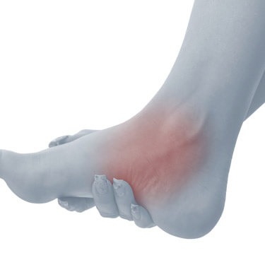 Pain in Foot