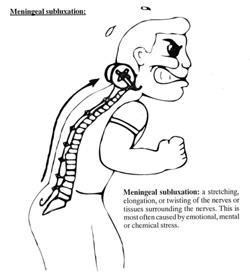 Meningeal Subluxation