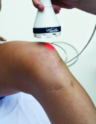 Laser Therapy on the Knee