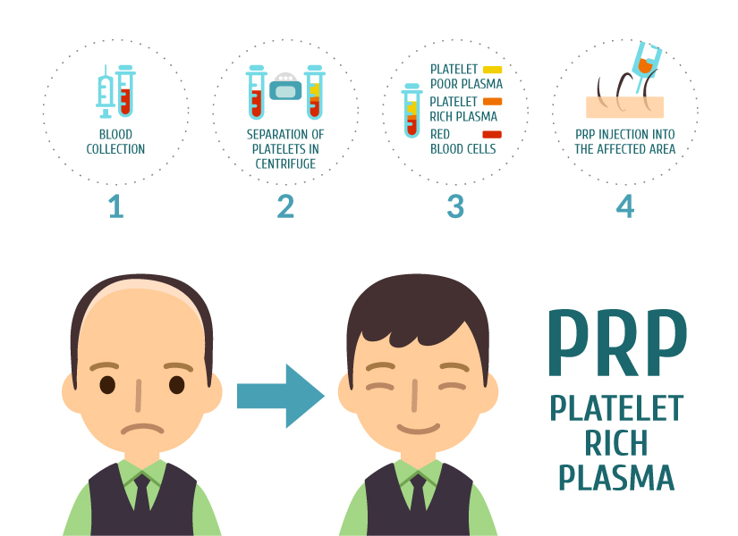 PRP Hair Loss Treatment infographic