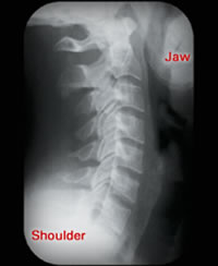 After Chiropractic Care