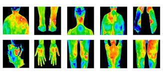 Digital Thermography
