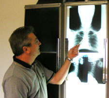 Dr. Fedon evaluates a patients x-rays.