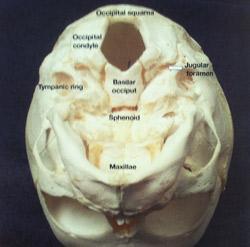 Whole Skull