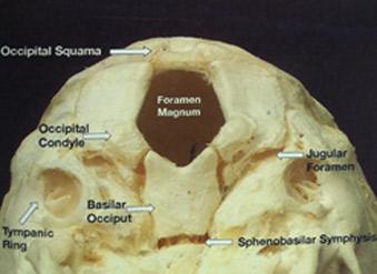 Skull half
