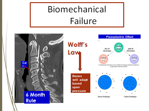 biomechanical-failure