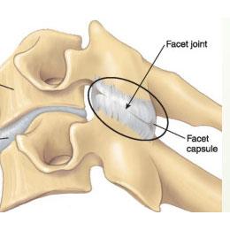 facet-joint