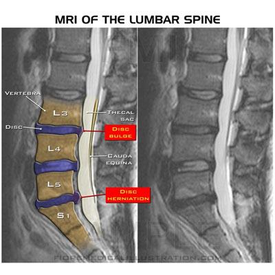 mri-of-lumbar-spine