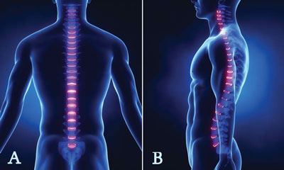 Spinal Profile