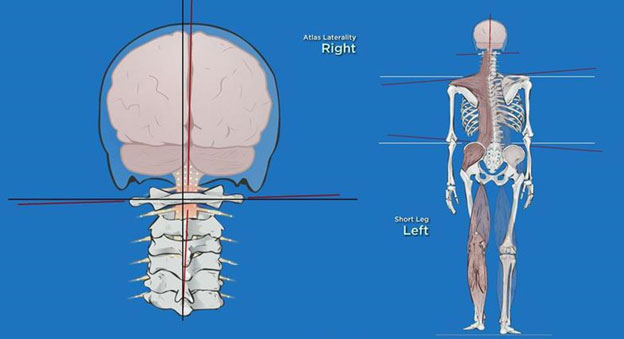 Upper Cervical Misalignment
