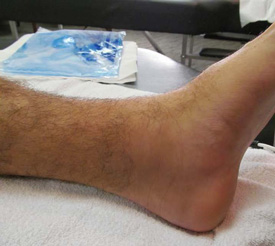 ankle day seven