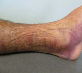 Ankle day one