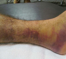 Ankle day three
