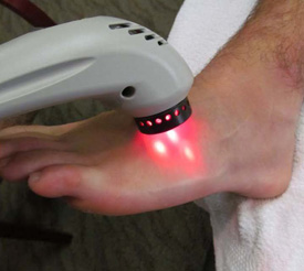 laser treatment day seven
