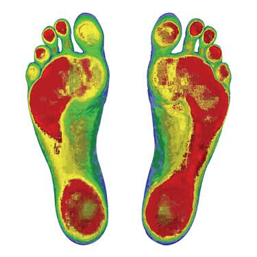 Foot Levelers scan of feet