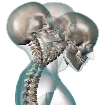 Illustration of whiplash injury