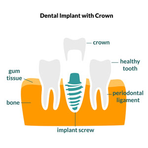 Crown with Implant