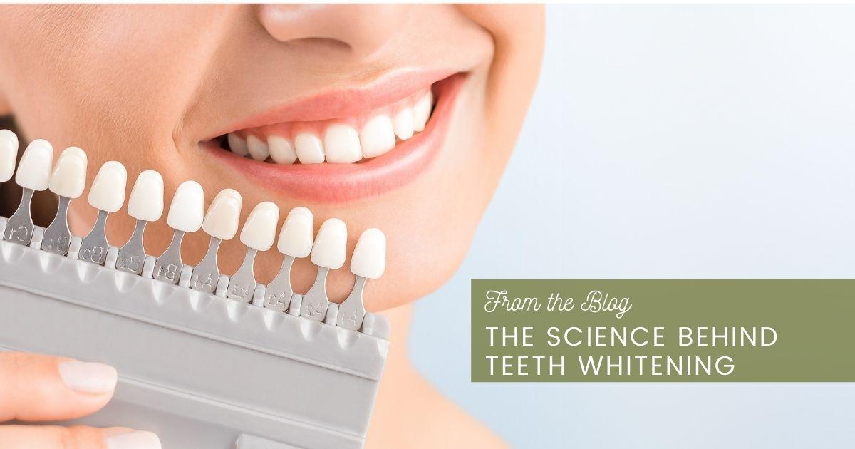 Shades of white teeth.