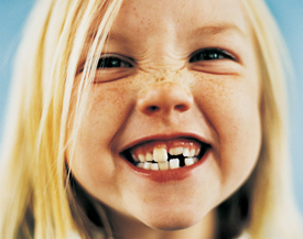 Portrait of a young girl with gappy teeth
