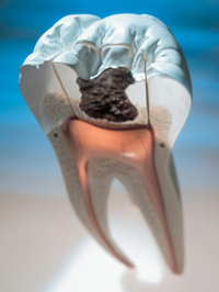 Model displaying the inside of human tooth