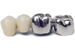 Dental crowns for back molars
