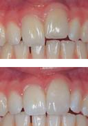 Before and after dental contouring