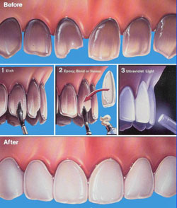 Before and after veneers illustration