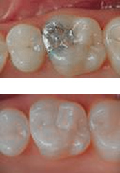 Silver vs. composite fillings