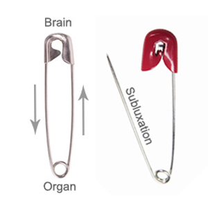 safety pins representing a subluxation