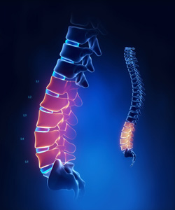 Fibromylgia and Chiropractic care