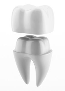 Dental Crowns Mindarie