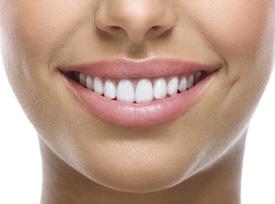 Dental Veneers Mindarie