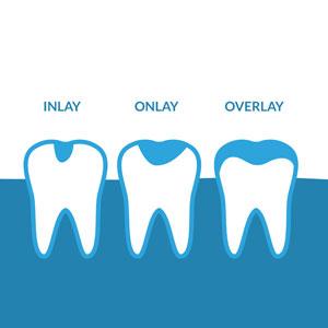 Illustration of dental inlay, onlay and overlay