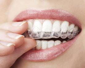Eastern Long Island Dentist Invisalign®