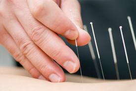Applying acupunture needles