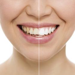 Teeth Whitening Tuggeranong