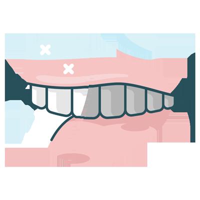 Teeth whitening illustration