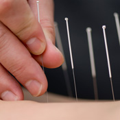 Acupuncture needles being applied