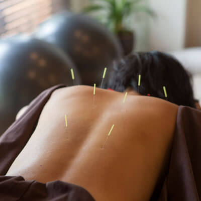 Acupuncture needles in the back