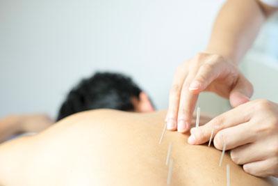 Applying needle on back