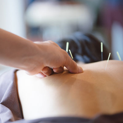 acupuncture needles on patients back