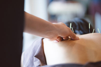 Applying acupuncture to back